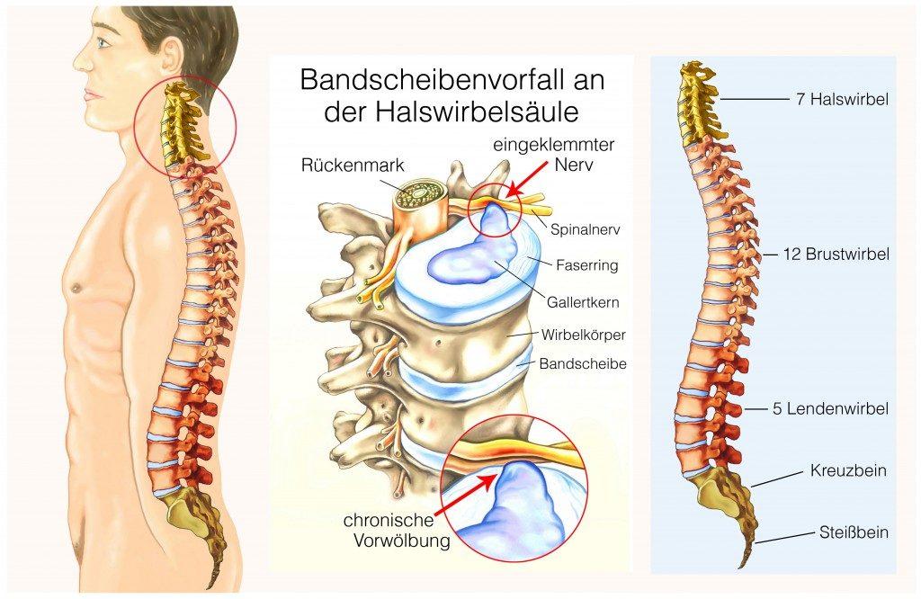 Halswirbel Wirkung_der_Therapie